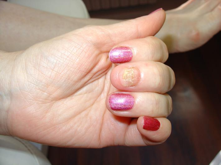 Гель лак на ногти пораженные грибком