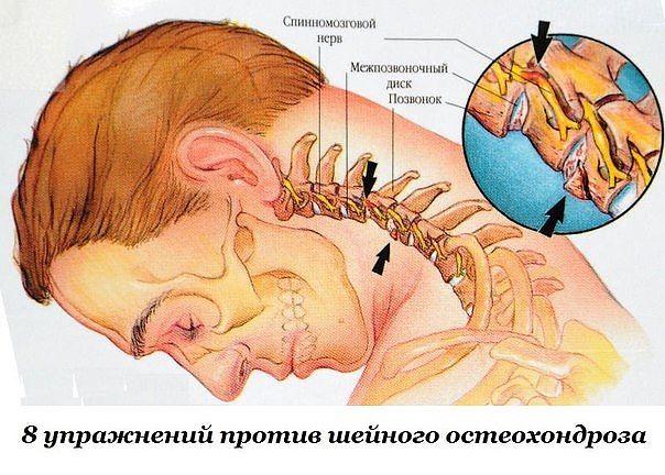 8 упражнений против шейного остеохондроза