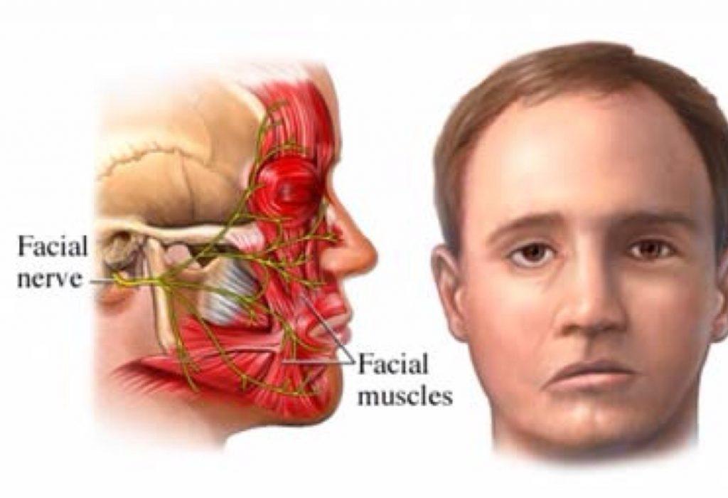 Симптомы паралича Белла и 10 натуральных средств для лечения