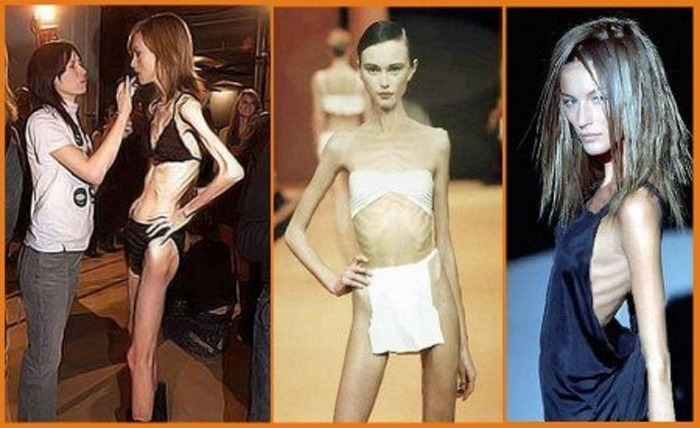 Sforza McIntosh: Жесть! Очень худые модели – под запрет! Теперь и во Франции. Видео