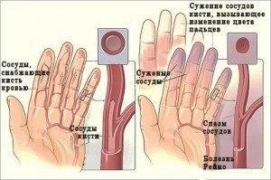Онемение рук и ног. Народные средства