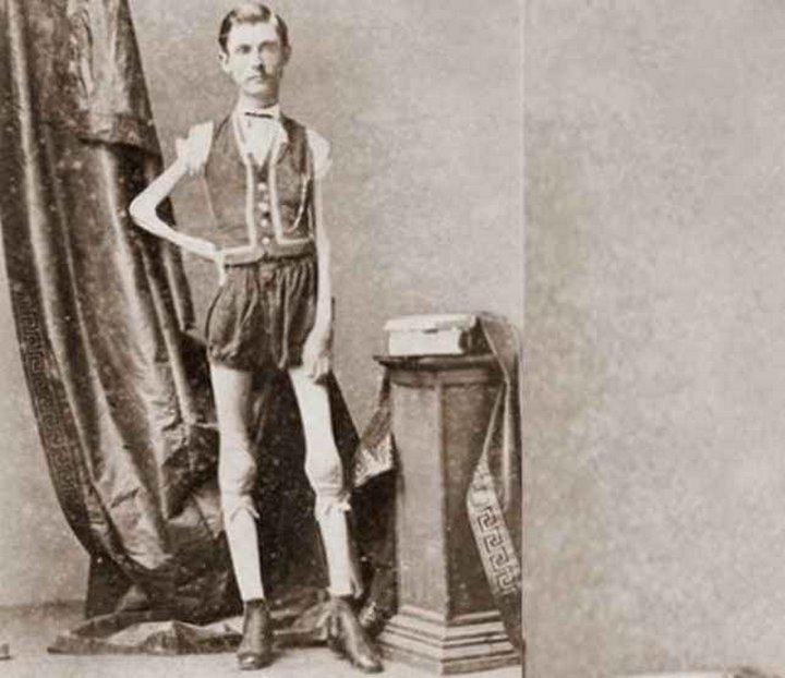 «Цирк уродов»: Страшное зрелище (фото). Исаак В. Спрэг (Isaac W. Sprague), Живой Скелет
