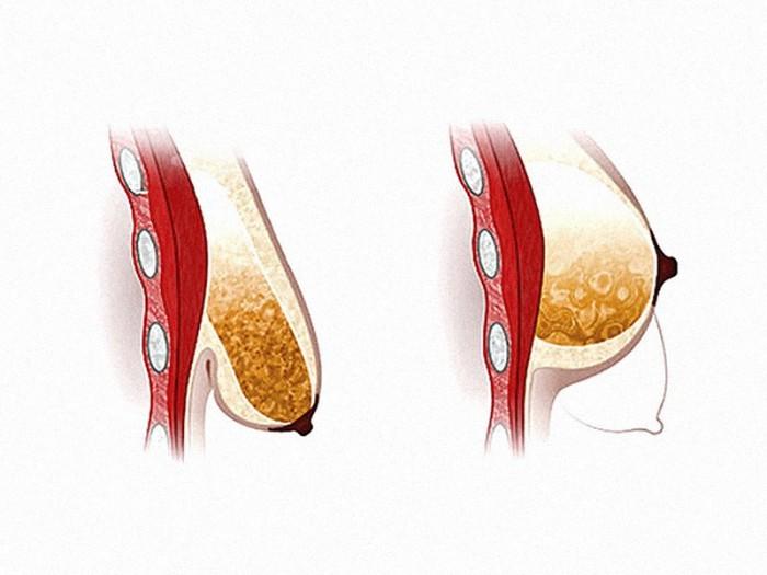 Увеличение груди с помощью лифтинг - кремов какой крем