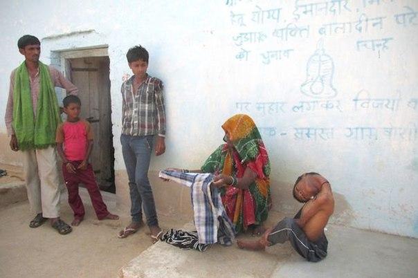 Полсотни индийских врачей не смогли понять, чем болен 12-летний мальчик с «резиновой» шеей
