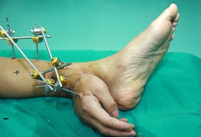 Спасая кисть пациента, врачи пришили её к ноге