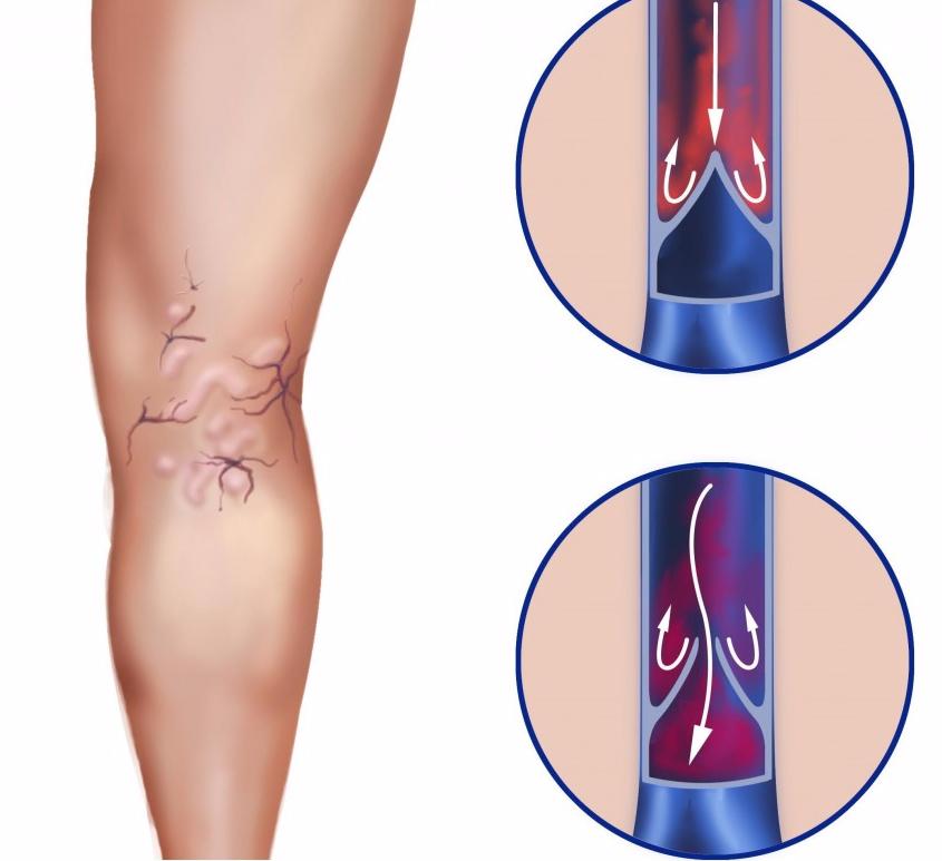Мазь от варикозного расширения вен: гладкие ноги в любом возрасте!