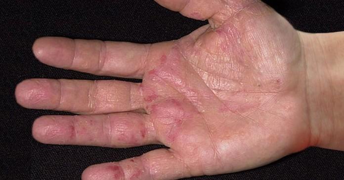 Первые симптомы рака проявля…