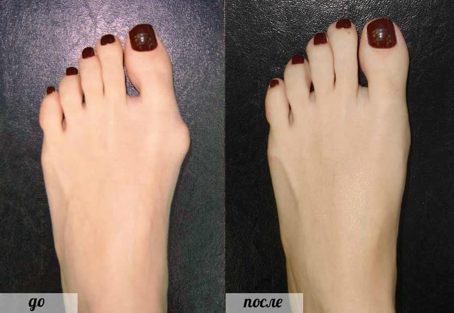 Лечение косточки на большом пальце ноги