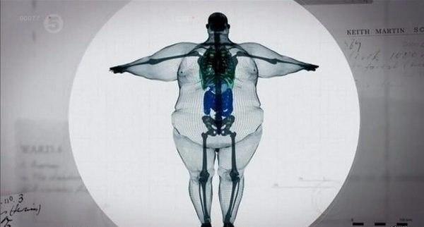 Рентген человека с широкой костью