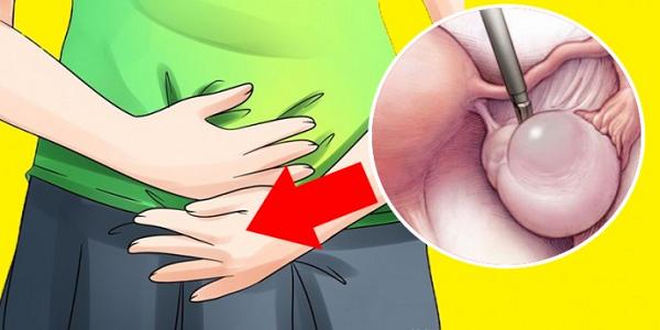 Ранние признаки кист яичников