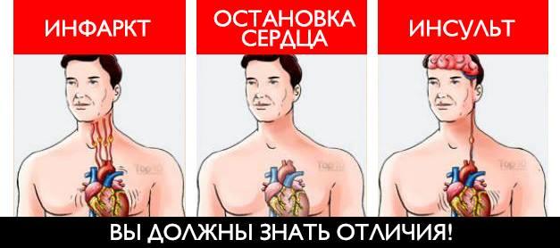 Вы должны понимать различия между сердечным приступом, остановкой сердца и инсультом
