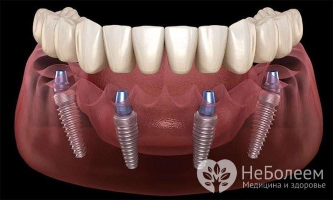 Имплантация зубов All-on-4: основные преимущества