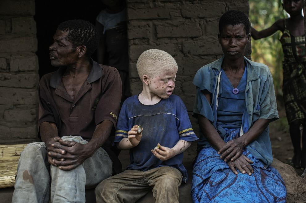 альбиносы - преследуемые белые-5