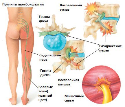 Боль в ягодице отдающая в ногу как лечить