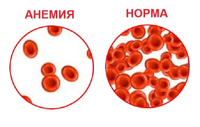 8 предупреждающих сигналов анемии