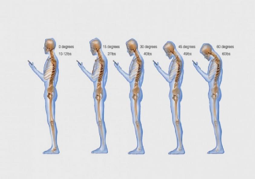 Под каким углом находится Ваша шея и какие последствия этого