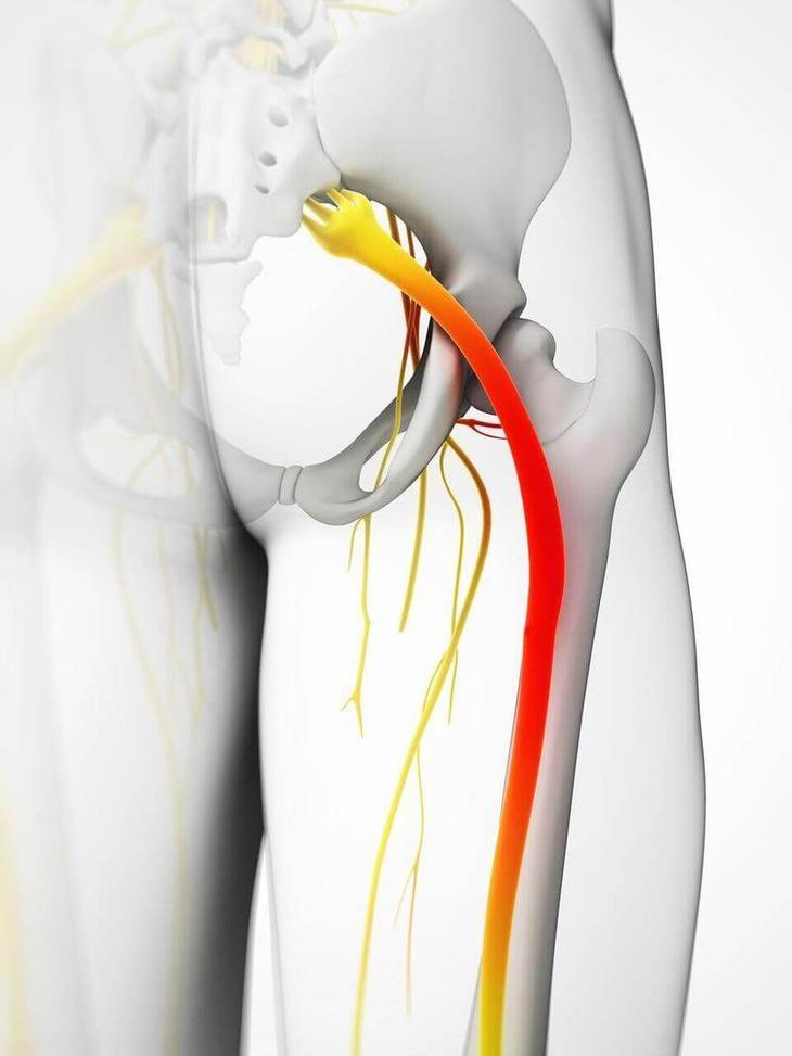 Защемление седалищного нерва: 5 способов облегчить боль