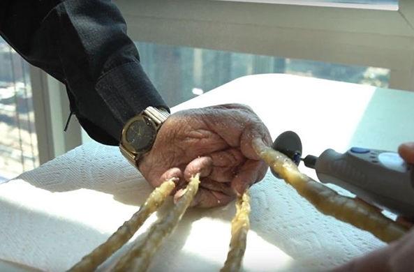 Человек с самыми длинными ногтями подстриг их