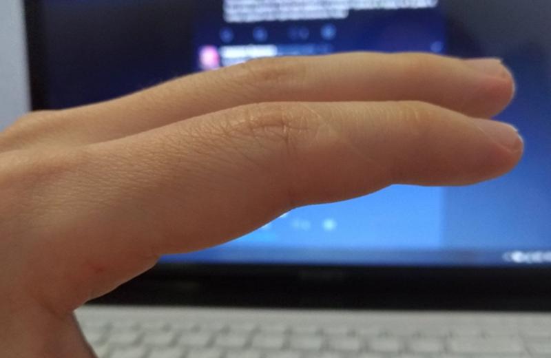 Люди вдруг осознали, что у всех них есть шрам на указательном пальце