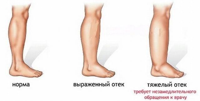 Боль в ногах? 10 простых решений