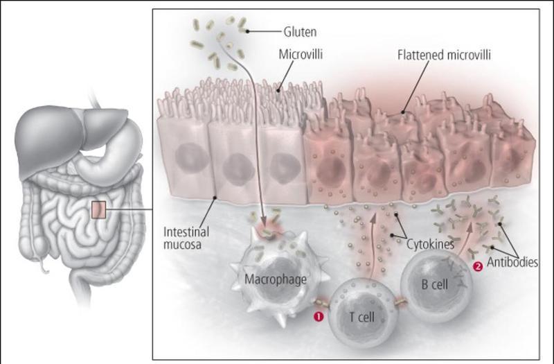 8 признаков того, что ваш организм не может справится с клейковиной