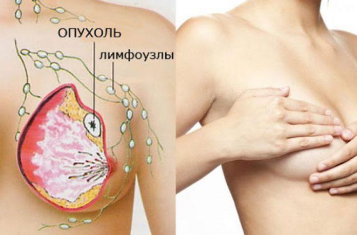 5 ранних признаков рака груди, которые большинство женщин игнорируют