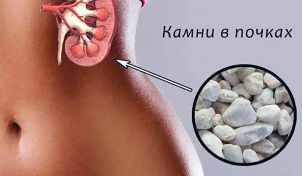 Народное лечение от камней в почках