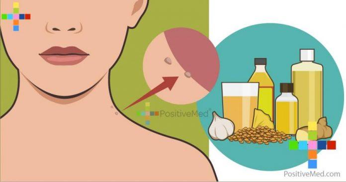 8 простых способов удаления папилломы, не посещения врача