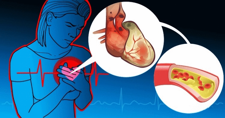 Холестерин «плохой» и «хороший»: как регулировать с помощью питания