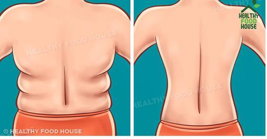 Как избавиться от жировых складок на спине в течение 21 дня