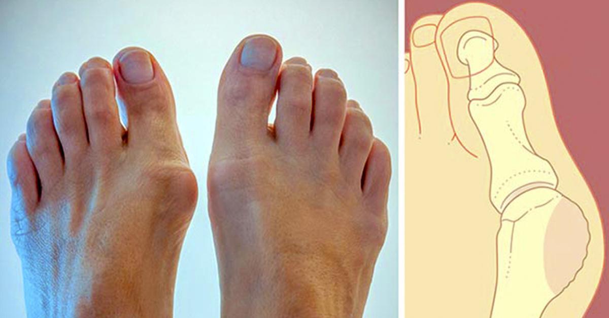 Вот как уменьшить размер косточек на ноге: 4 натуральных рецепта