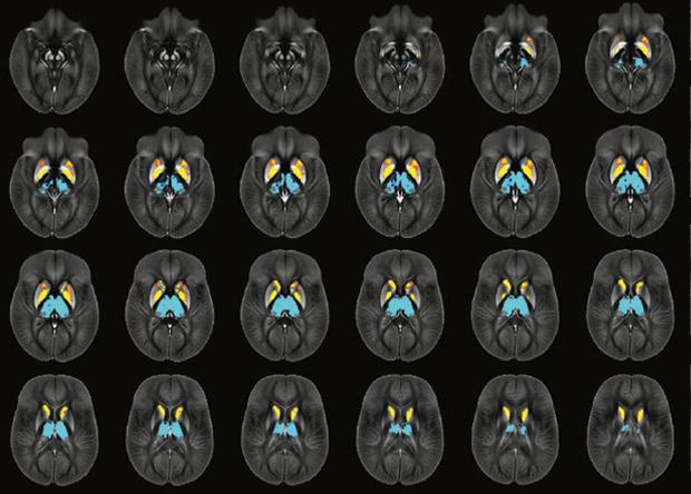 Уровень железа в мозге предс…