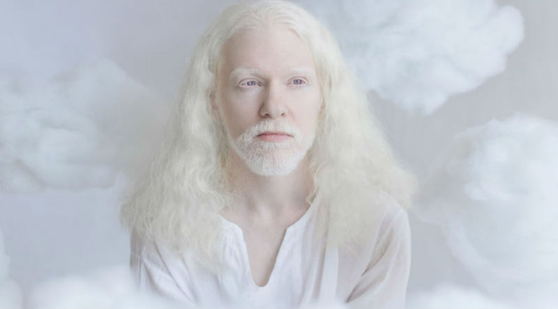 Фотограф Юлия Тайц  и  красивые фотографии  с людьми-альбиносами