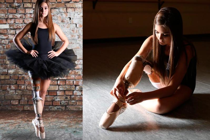 Даже с ампутированной ногой девушка стала балериной