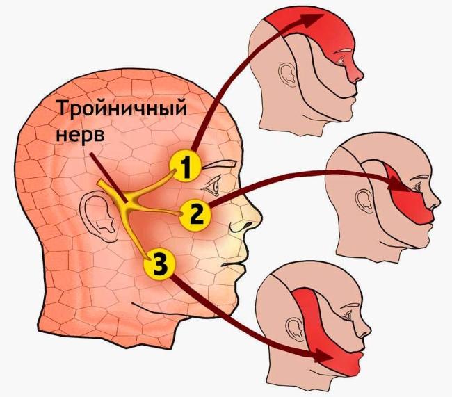 Почему воспаляется тройничный нерв