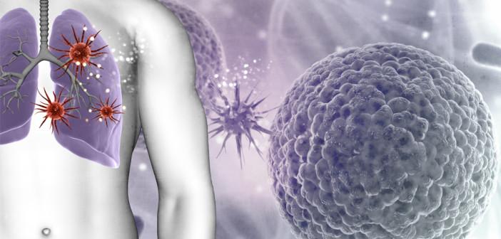 Установлена связь между частотой инфекционных заболеваний и развитием онкологии