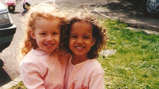 Когда они родились, никто не верил, что они — близняшки. Сейчас им 20 и вот как они выглядят…