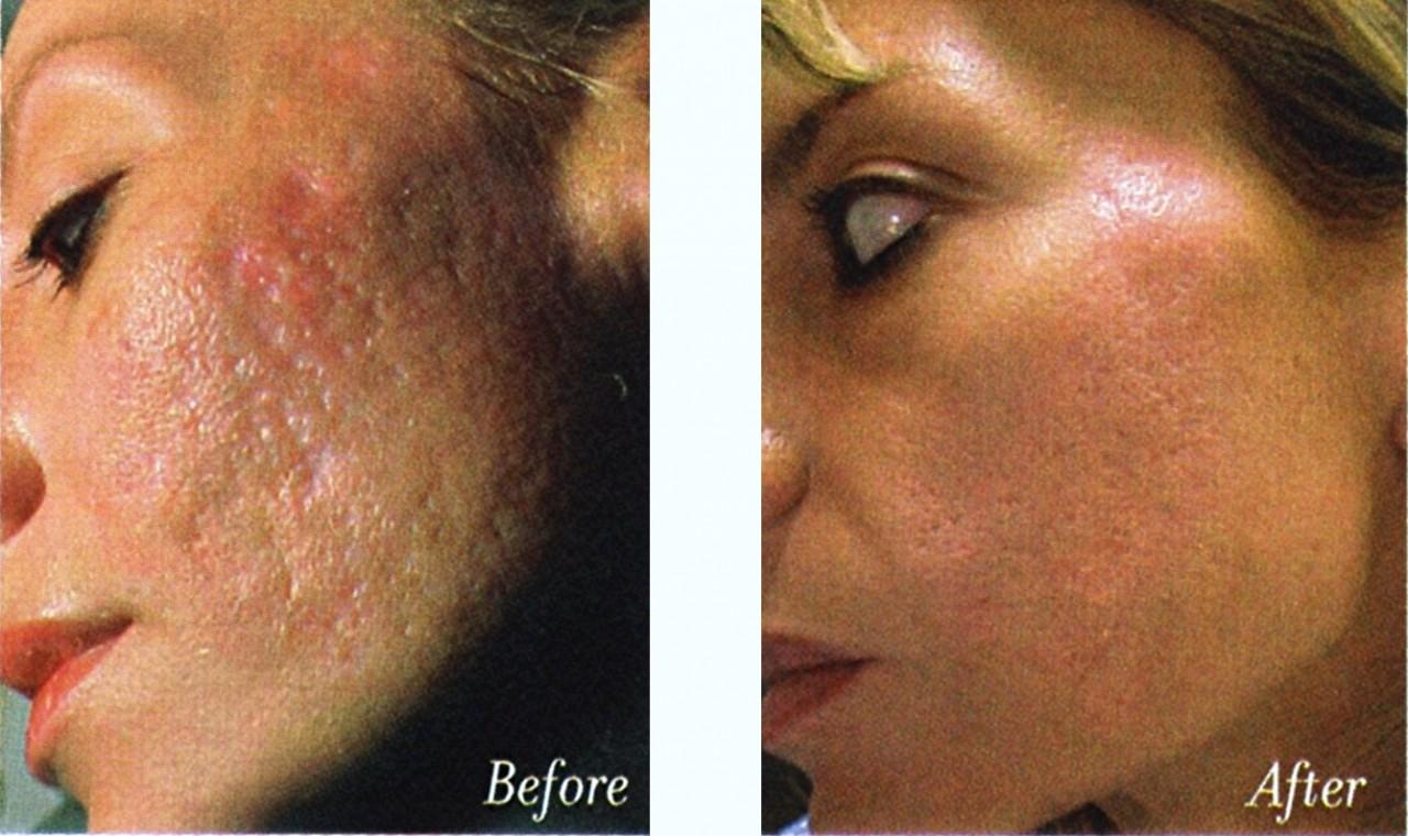 О лазерном пилинге (лазерной шлифовке) кожи