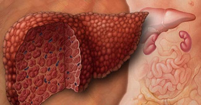 Холестатический гепатит: при…