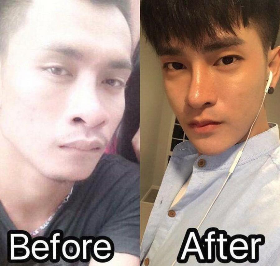 Самая бесполезная пластическая операция: таиландец стал корейцем