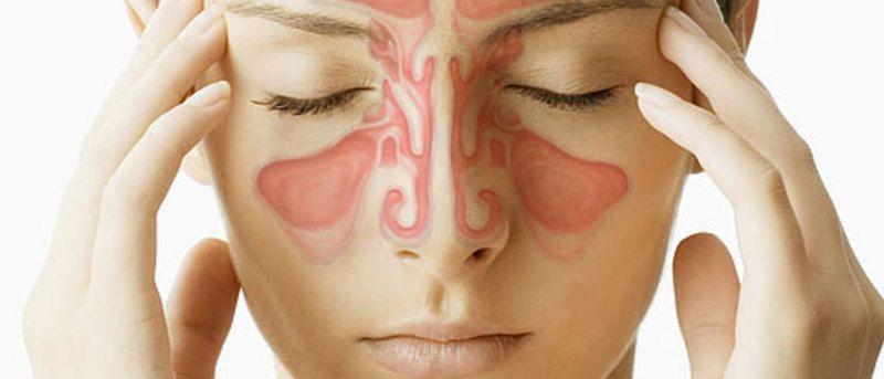 5 признаков синусовой инфекц…