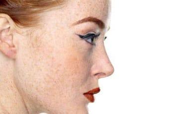 Пигментные пятна на лице: причины появления и методы устранения с кожи лица