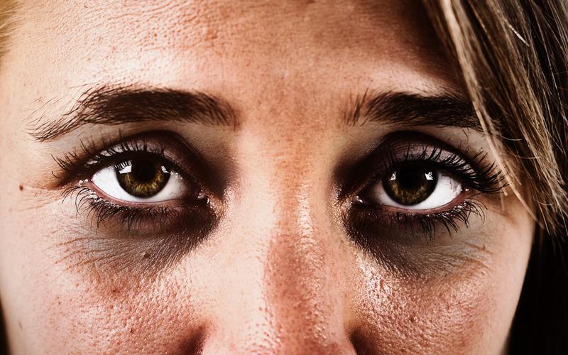 средство от синяков под глазами