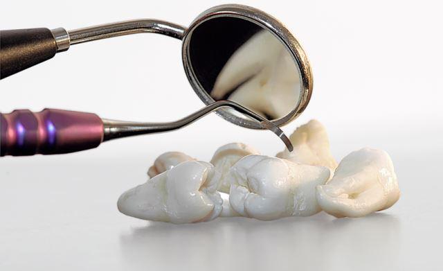 Почему у некоторых людей не растут зубы мудрости