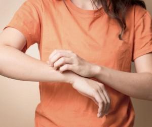 4 натуральных средства лечения экземы