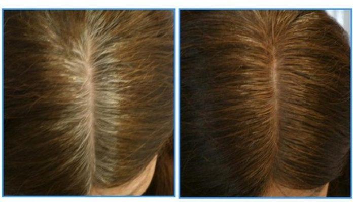 Как бороться с сединой естественным способом и вернуть волосам темный цвет