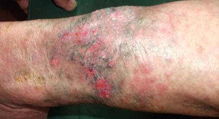 Незаживающая рана после укуса собаки