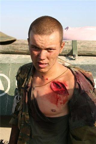 Русский солдат, раненный в Цхинвале! Вы только посмотрите на его взгляд, пока есть такие пацаны Россия непобедима!