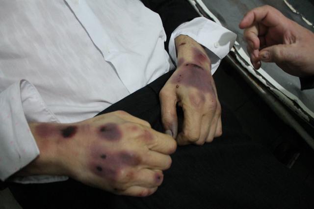 Совет Европы обеспокоился пытками в украинских тюрьмах