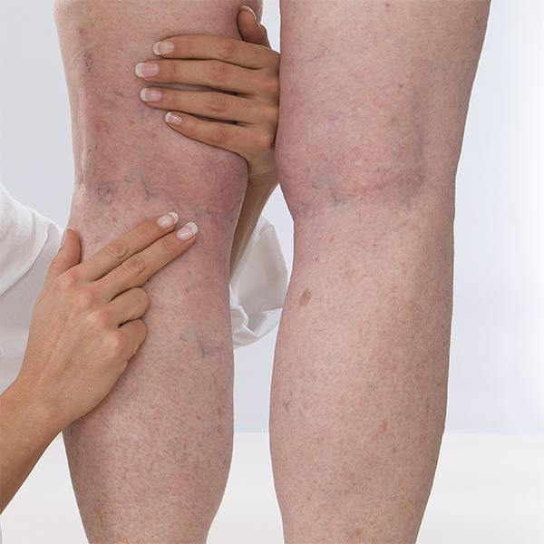 тромбоз поверхностных вен нижних конечностей симптомы лечение